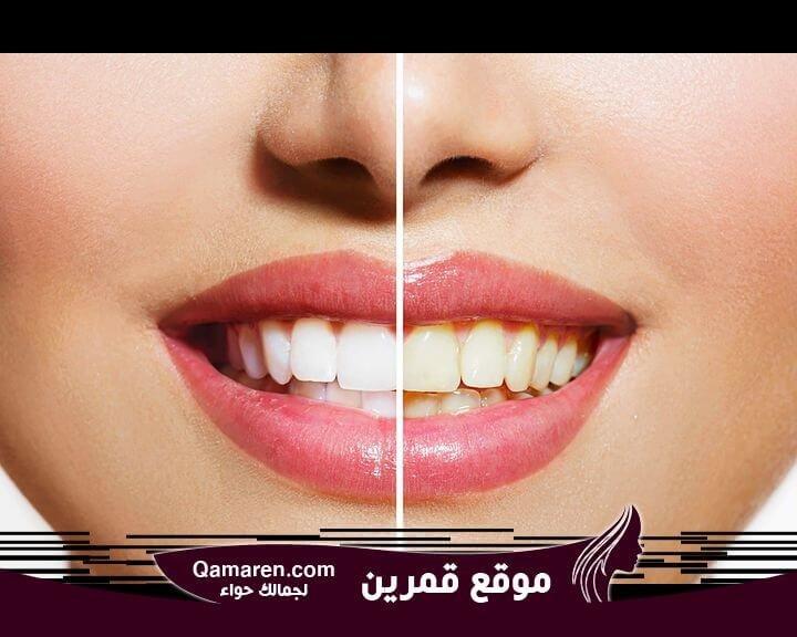 إرشادات للحفاظ على لون الأسنان الأبيض