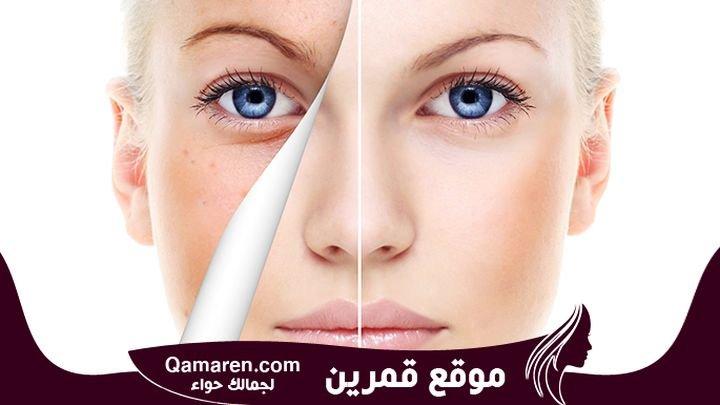 فوائد تقشير الوجه مع أفضل الوصفات الطبيعية
